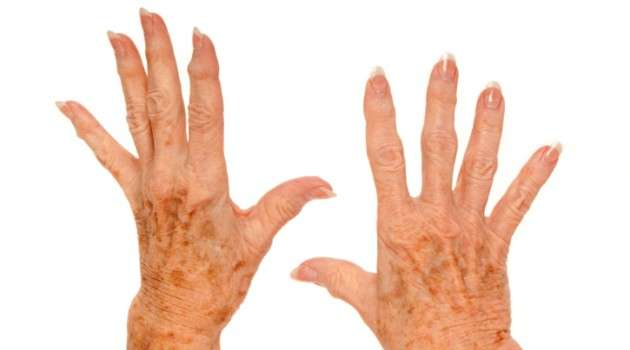 Como acabar com a artrose?