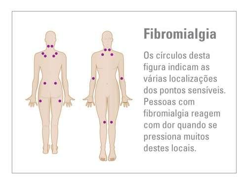 Sintomas de Fibromialgia