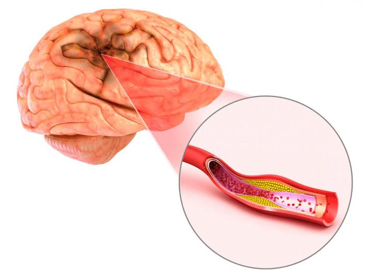Aneurisma: Causas, sintomas e como tratar