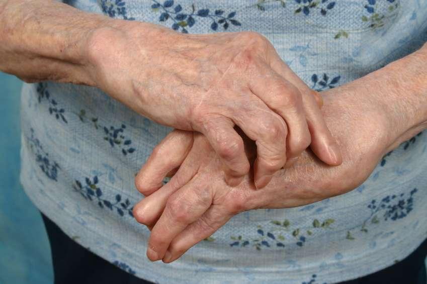 Tratamento para reumatismo nos ossos