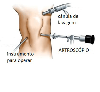Artroscopia do joelho: Tempo de recuperação, preço e pós operatório