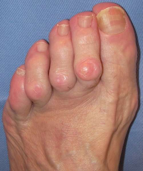 dedo do pé em martelo
