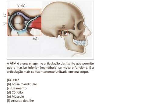 Tratamento para Dor na Articulação Temporomandibular (ATM)