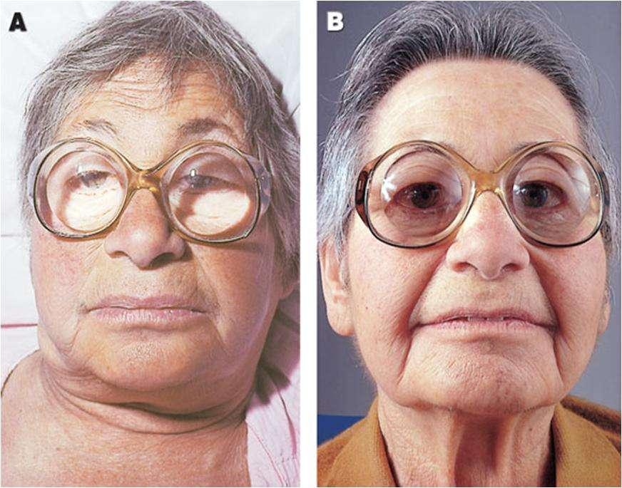 Hipotireoidismo antes e depois do tratamento