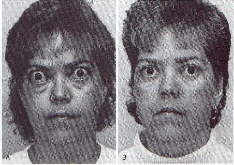 Hipotireoidismo em mulher antes e depois do tratamento