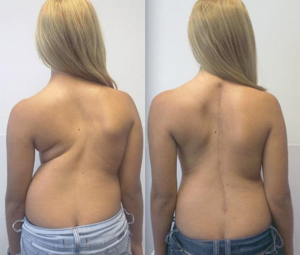 Imagens antes e depois de uma cirurgia corretiva para escoliose