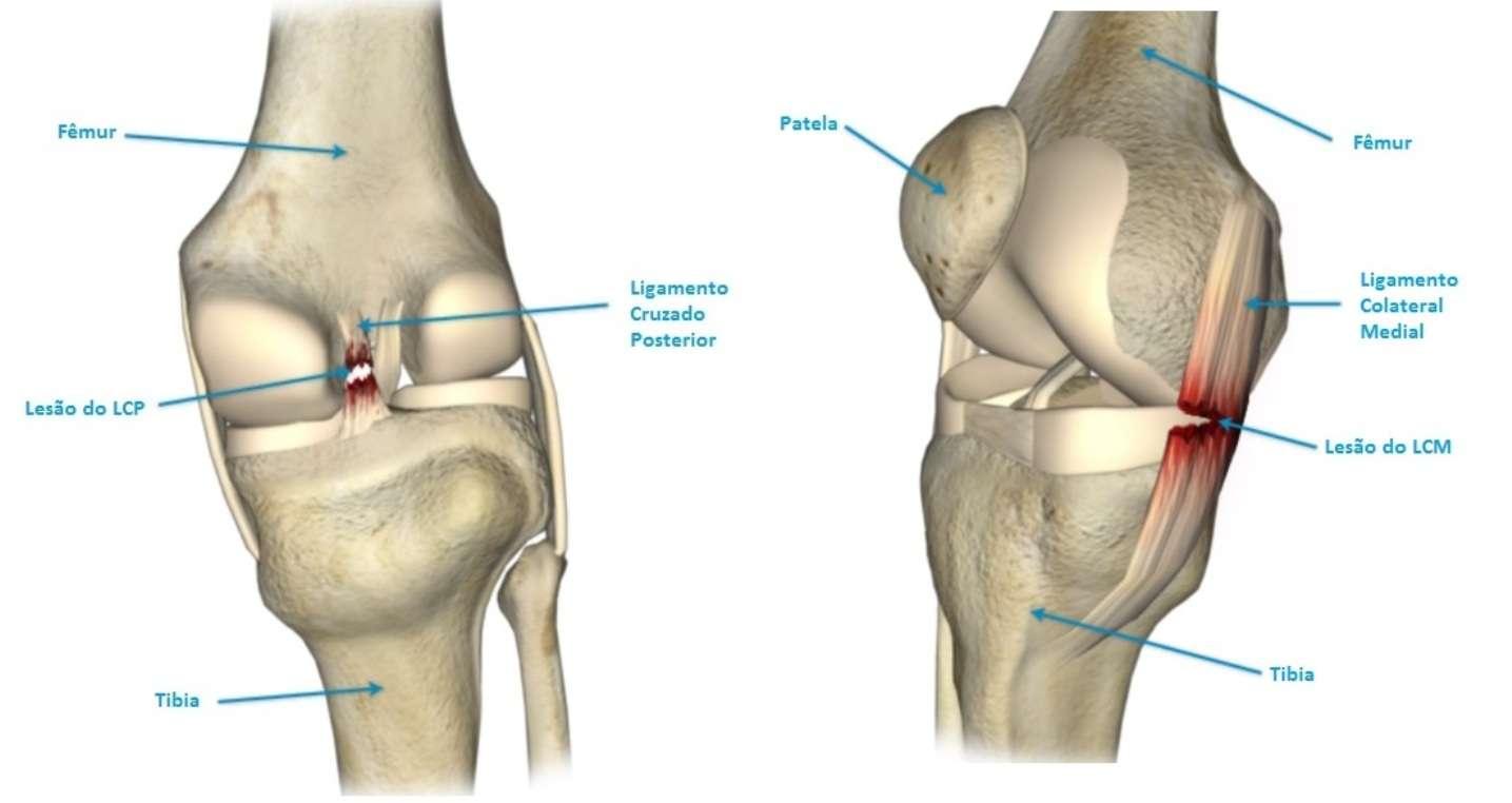 Lesão nos ligamentos do joelho