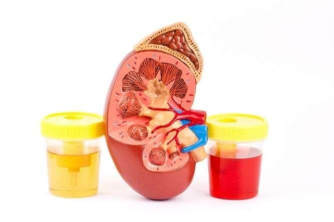 Sangue na urina, É importante investigar a causa do sangramento em todo o sistema urinário