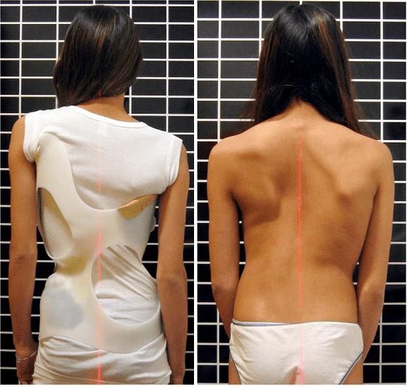 antes e depois do uso do colete de cheneau