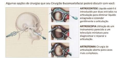 cirurgias para disfunções da Articulação Temporomandibular (ATM)