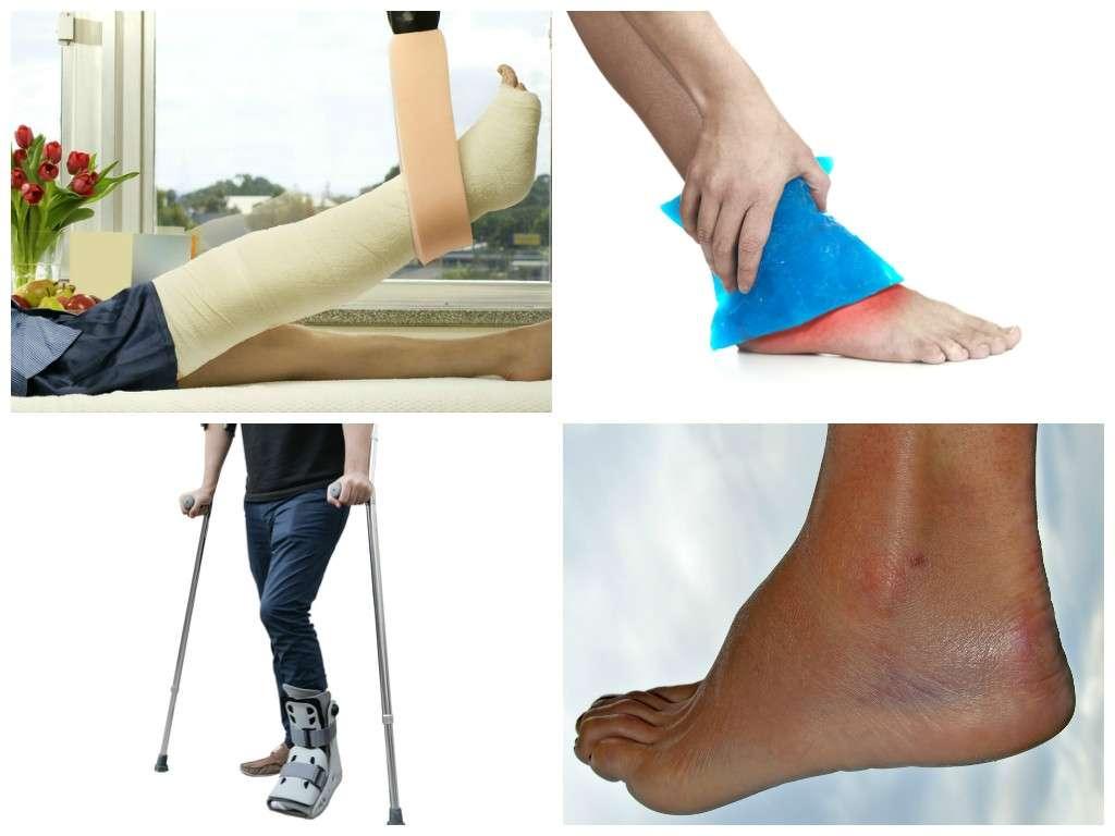 dicas para tratar uma entorse de tornozelo em casa
