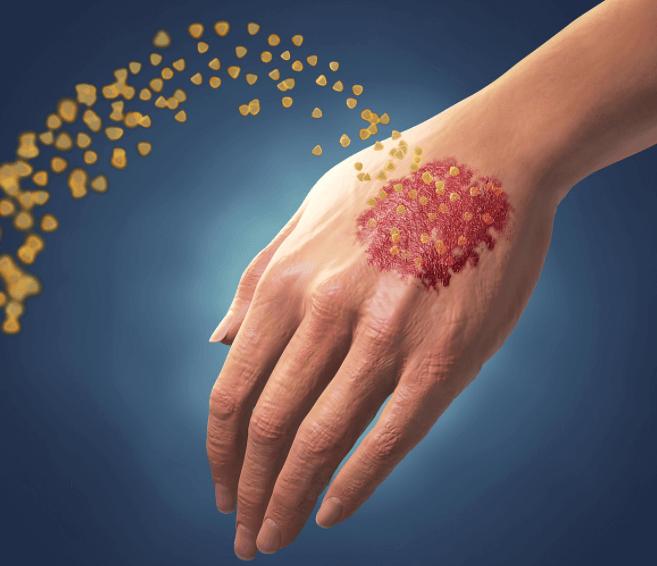Artrite Psoriática Nas Mãos