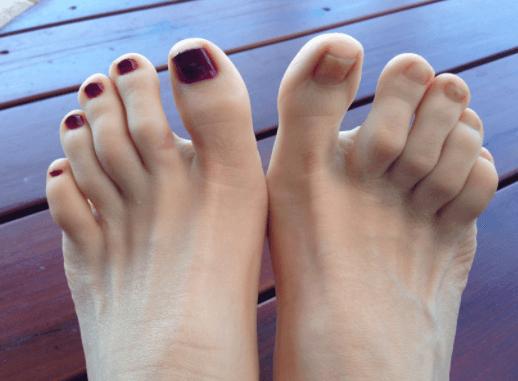 Artrite Psoriática