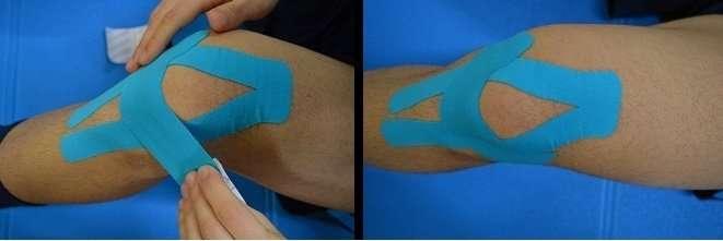 Kinesio taping para tendinite patelar com a aplicação de um curativo para apoiar a patela