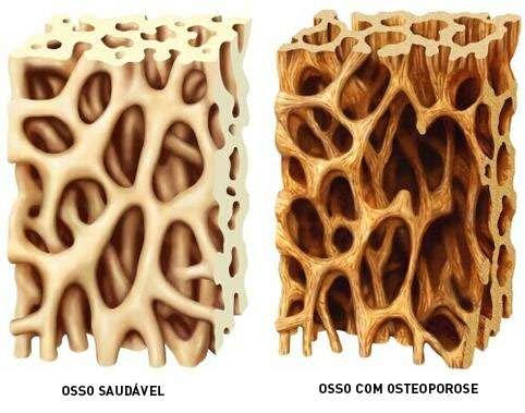 foto de osso com osteoporose