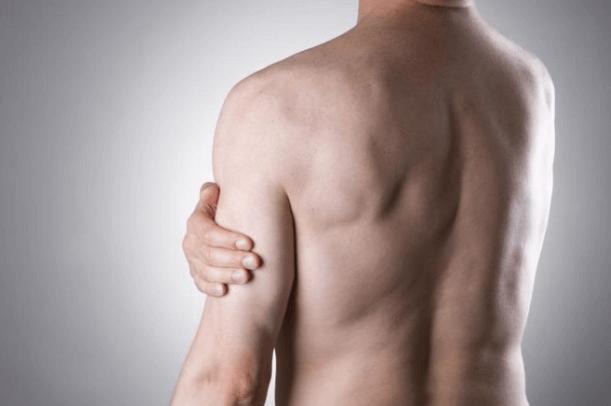 Sintomas De Tendinite No Ombro