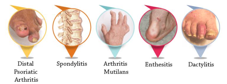 Tipos De Artrite Psoriática