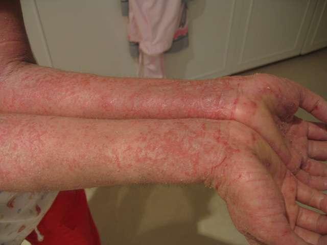 Foto de Dermatide Atópica