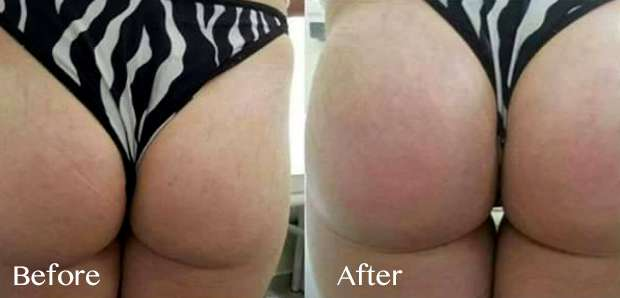 magic pump em nádegas antes e depois