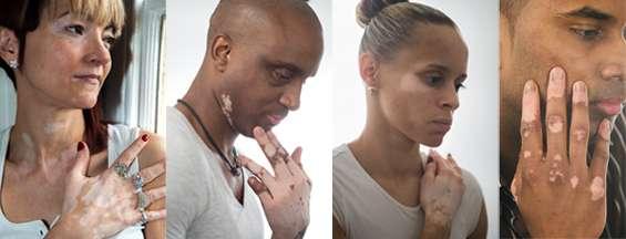 piperina trata vitiligo