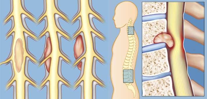 Tumores da Medula Espinhal