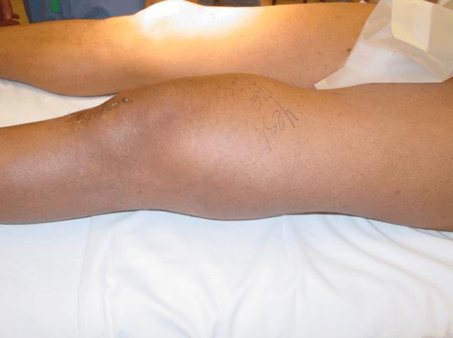 Os sintomas mais frequentemente são dor e o aparecimento de uma massa palpável.