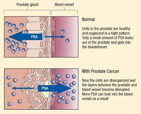 exame de PSA, resultados normais e anormais