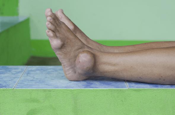 gota é um tipo de artrite que afeta as articulações