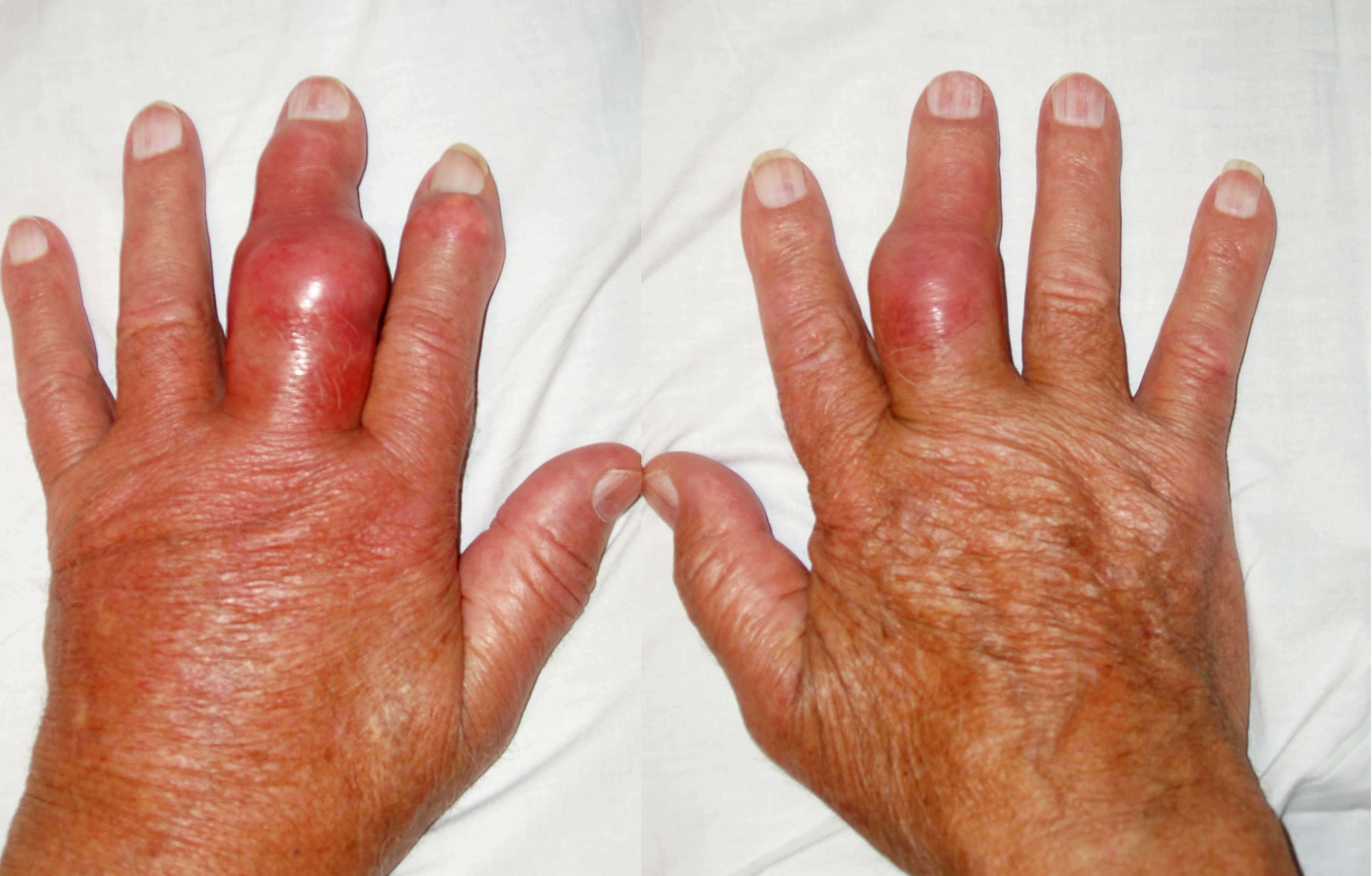 inflamação, inchaço e dor nas mãos