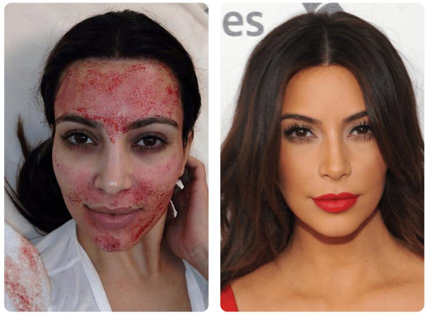 Facelift de Vampiro antes e depois em Kim Kardashian