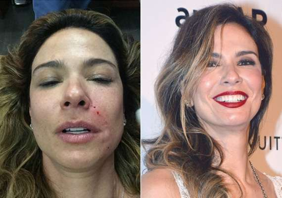 Luciana Gimenez antes e depois do lifting do vampiro