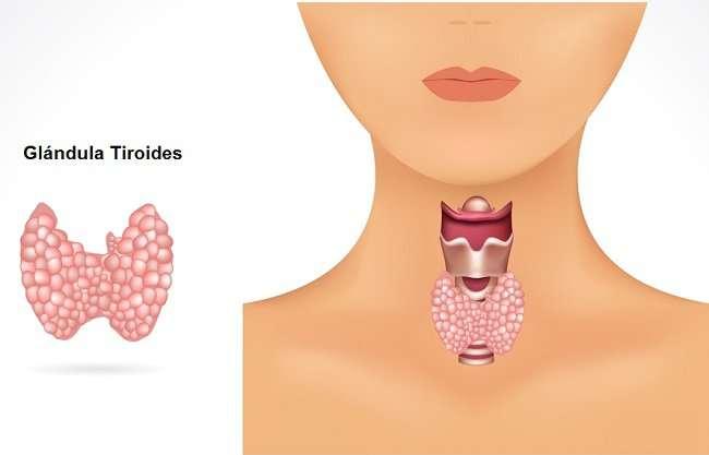Conheça as 6 Principais Causas do Hipotireoidismo