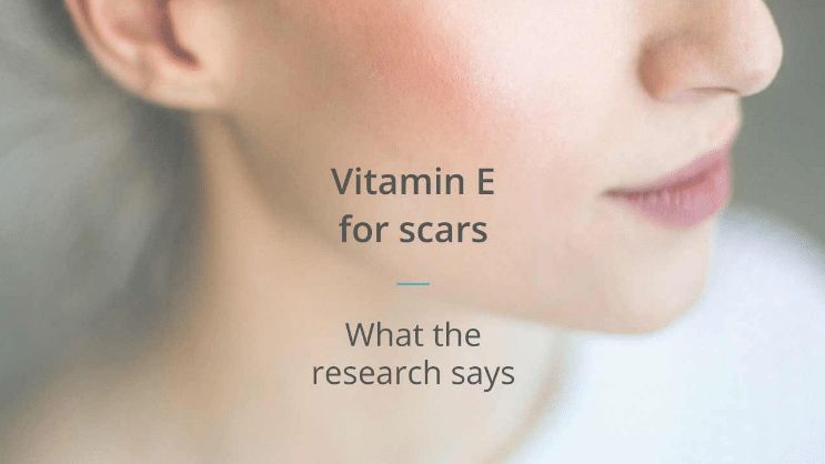 óleo de vitamina E para acne