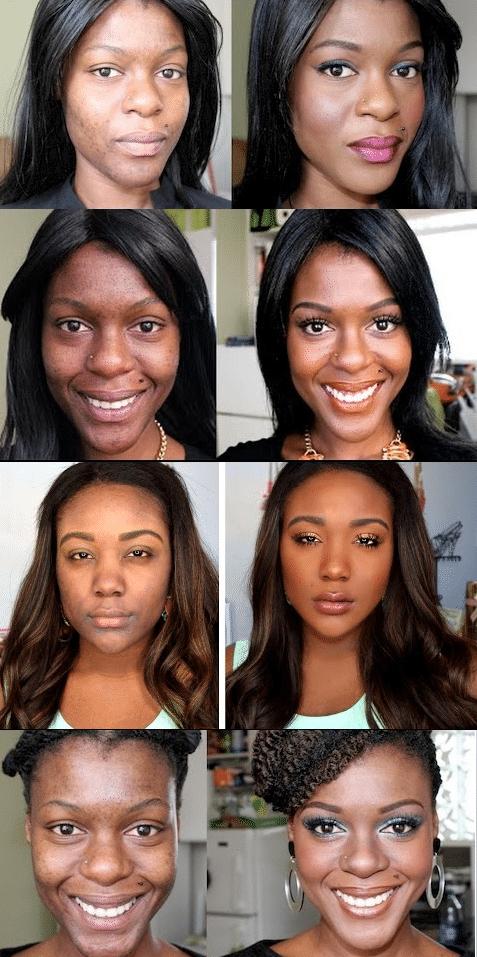Alterações de pigmentação na pele escura antes e depois