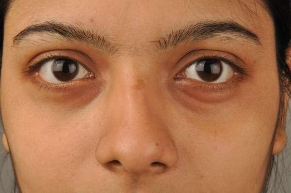 As olheiras podem ser causadas pele simples retenção de liquidos