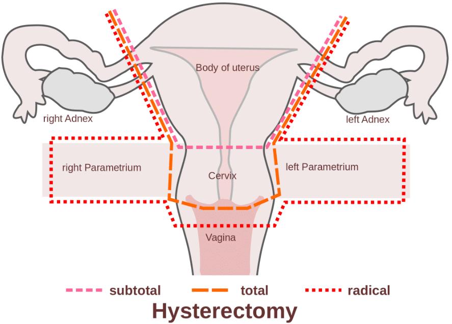 Histerectomia Vaginal: libido e vida sexual após a cirurgia