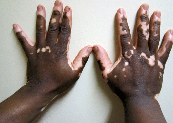 Hipopigmentação, Vitiligo, Alterações de pigmentação na pele escura