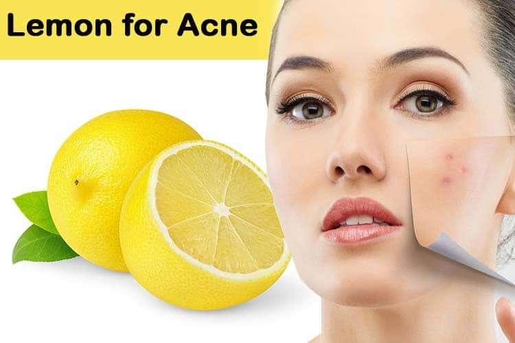 Limão anti-borbulhas e acne