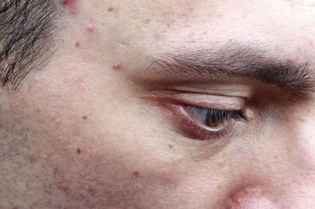 4 Remédios caseiros para eliminar Borbulhas em peles oleosas
