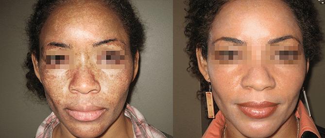 Tratamentos estéticos em peles negras