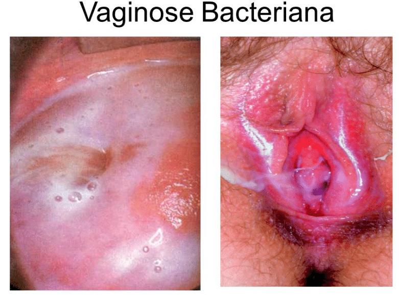 Soft stool after anal gland secretion — photo 8