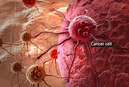 celulas-cancerigenas
