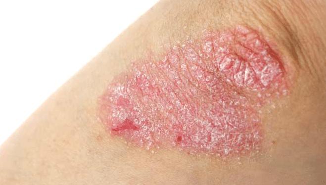 foto-de-eczema
