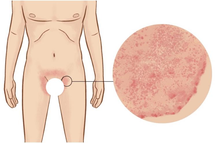 10 Remédios Caseiros para Micose na Virilha (Tinea Cruris)