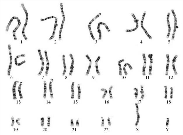 figura-2-cariotipo-de-cromossomas-normais