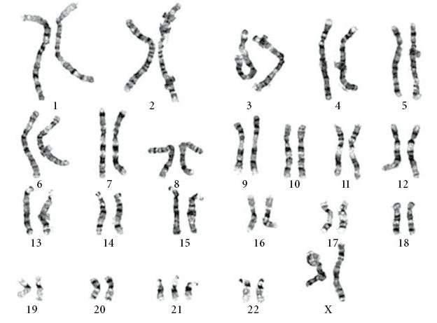 figura-6-cariotipo-dos-cromossomas-com-trissomia-21-por-nao-disjuncao