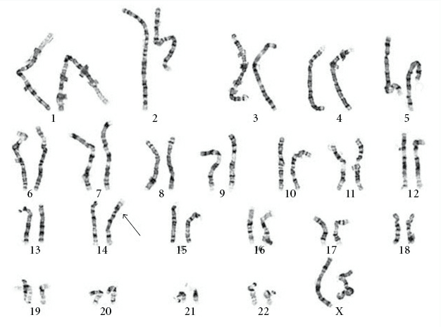 figura-7-cariotipo-do-cromossoma-com-trissomia-21-por-translocacao