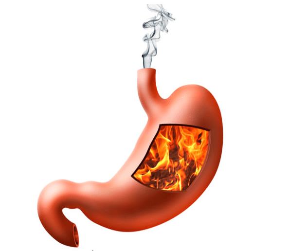 O que Causa Queimação no Estômago e Garganta