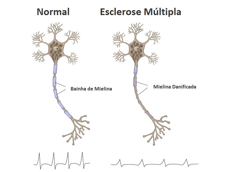 Conheça a ligação entre a osteoporose e esclerose múltipla: Fator de Risco