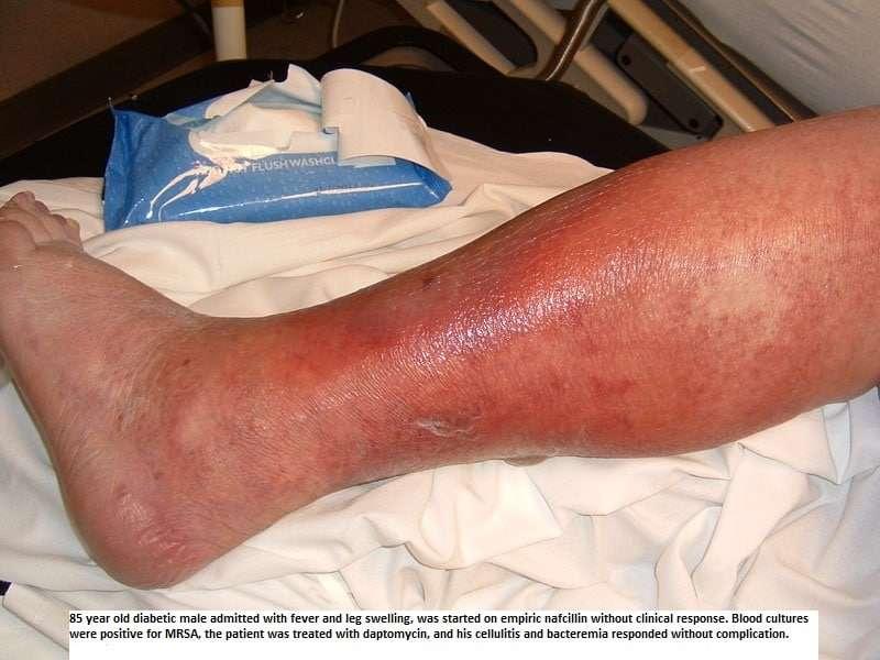 foto-de-celulite-infecciosa-na-perna